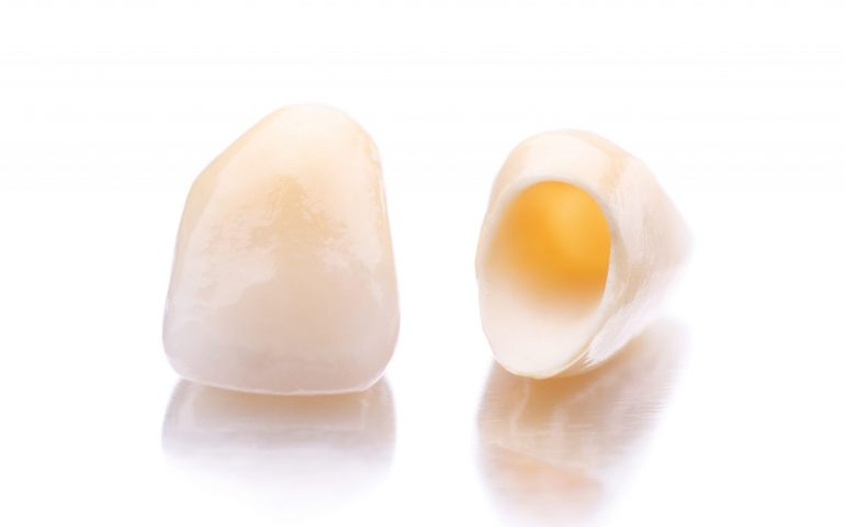 Close-up of two prosthetic teeth