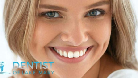 Perfect Teeth Whitening in Lake Mary, Florida